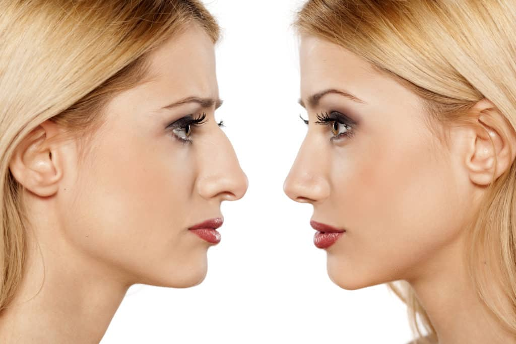Benefits of Rhinoplasty