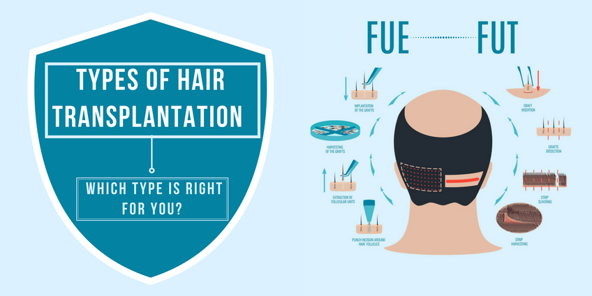 Types of Hair Transplantation – Which Type is Right for You?