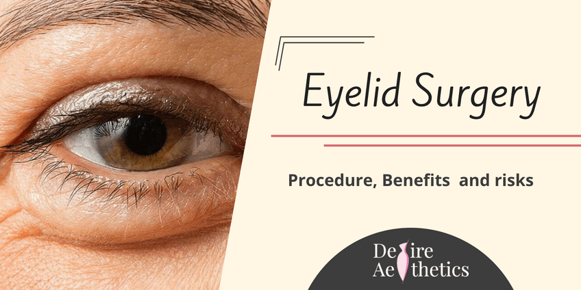 Key Facts about Eyelid Surgery
